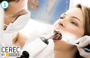 die CEREC-Methode - Phase 1
