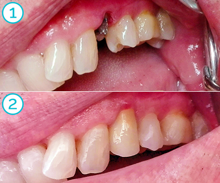 fully ceramic cerec crowns, before and after