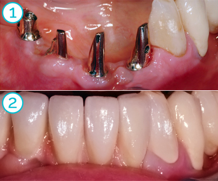 gold/ceramic bridge on implants in the lower jaw (Rovatti Gianluca dental lab)