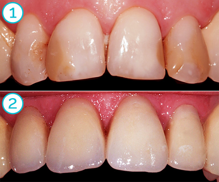 upper incisors, ceramic bridge, before and after (Rovatti Gianluca dental lab)