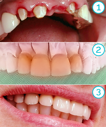replacement of an old bridge: full ceramic supply in the frontal area (Teknoprogress dental lab)