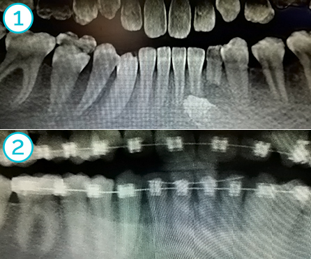 impacted canin lower left, orthodontically repositioned